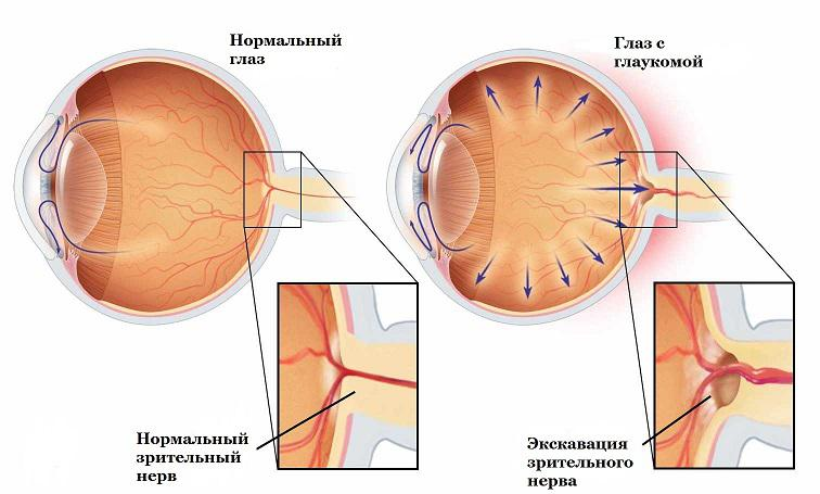 Операция при глаукоме в ростове