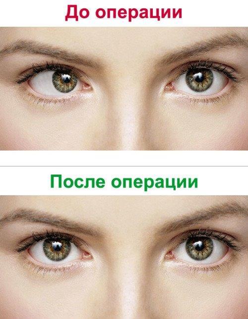 Лечение косоглазия в Ростове-на-Дону в глазной клинике Сокол